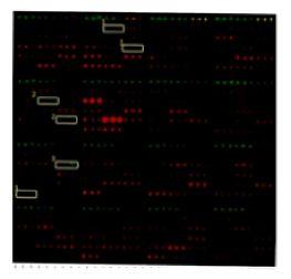 Microarray1